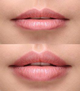 labios antes despues Medicina Estética Facial Valencia Precio