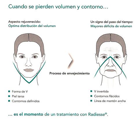 Radiesse Medicina Estética Facial Valencia Precio