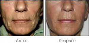 Sculptra Medicina Estética Facial Valencia Precio