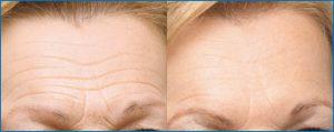 Antes y despues frente botox