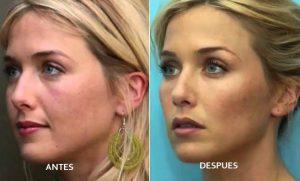 Aumento y relleno de pomulos Medicina Estética Facial Valencia Precio