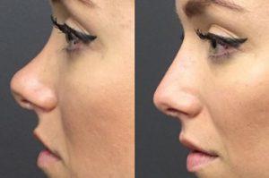 Ácido hialurónico Medicina Estética Facial Valencia Precio