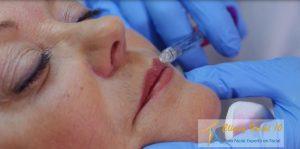 Perfilando labios compressor Medicina Estética Facial Valencia Precio
